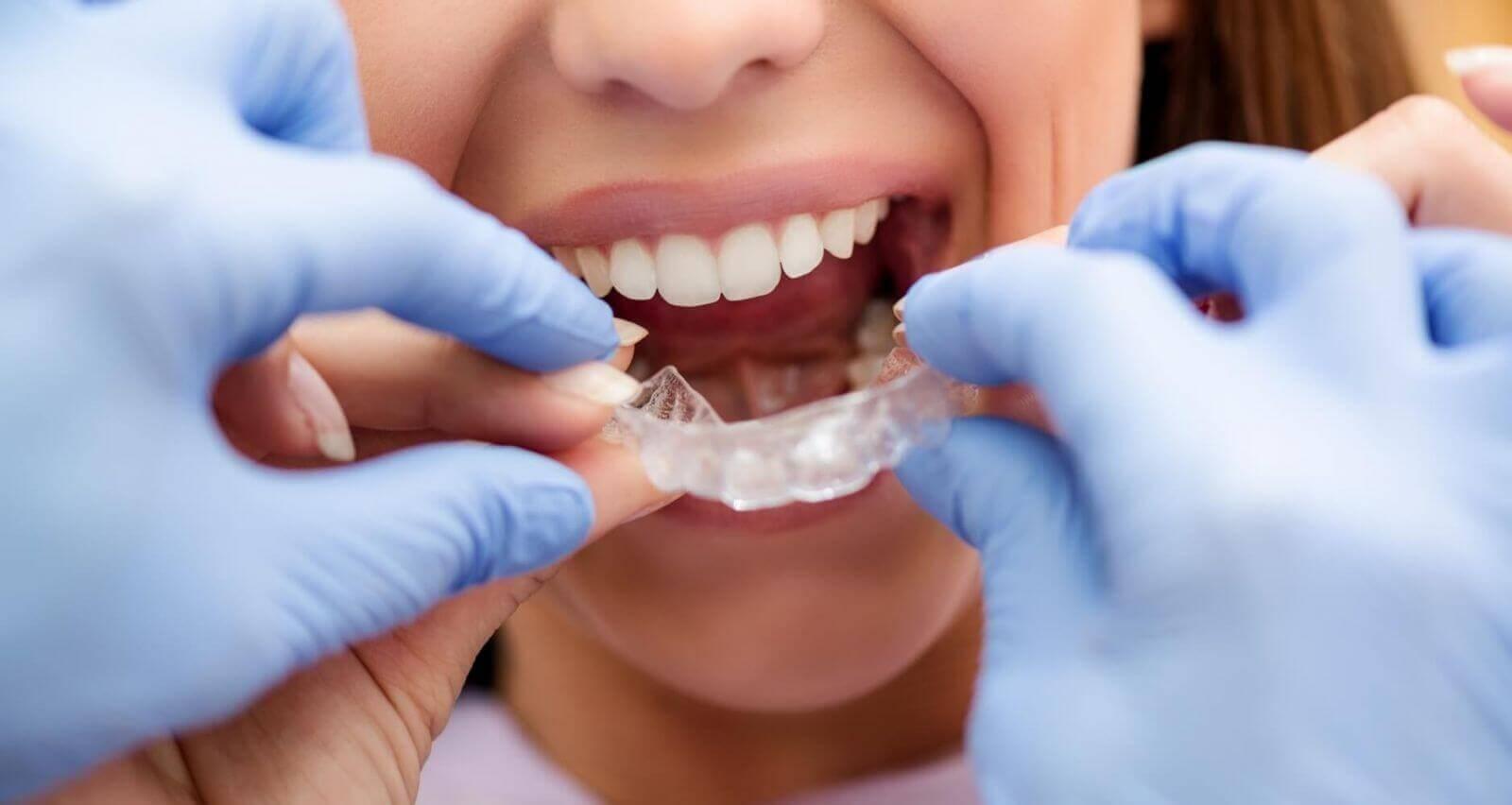 Прозрачные (невидимые) брекеты  для выравнивания зубов