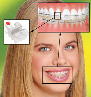 Occlusion correction 3