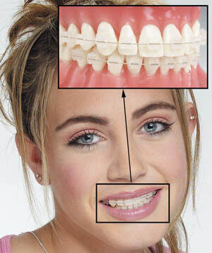 Occlusion correction 4
