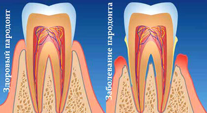 Gum treatment, periodontology 2