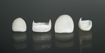 Installation and production of veneers